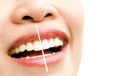 Les causes des dents tachées.