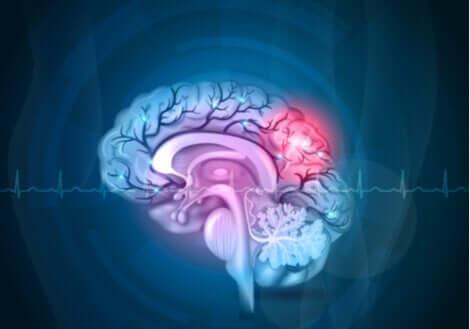 Un cerveau en image.