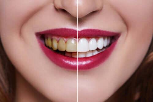 Causes des dents tachées