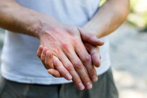Une dermatite sur la main.