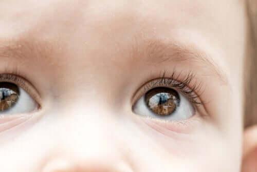Glaucome infantile : symptômes et traitement