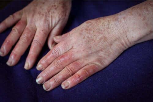 Maladie de Buerger : causes, symptômes et traitements