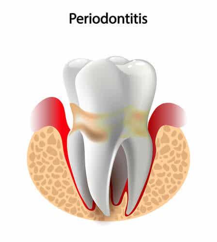 La maladie parodontale.