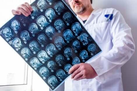 Un médecin qui examine des radiographies de la tête.