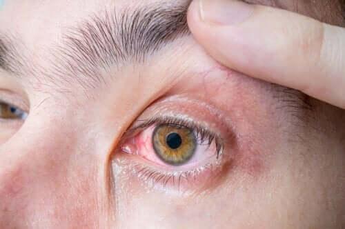 Mélanome oculaire : symptômes et causes