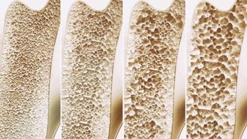 Ostéoporose de l'os.