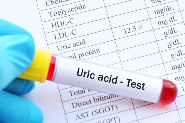 Acide urique élevé : quelles sont les conséquences ?