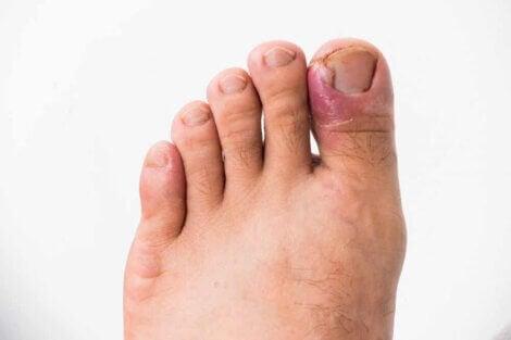La mycose des ongles.