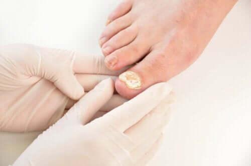 7 manières de prévenir une mycose des ongles