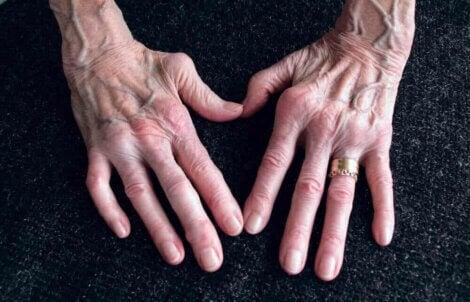 La polyarthrite rhumatoïde.