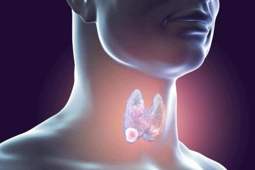 Cancer de la thyroïde.