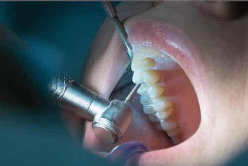 Traitement pour un traumatisme dentaire.