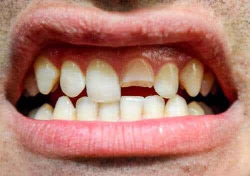 Traumatisme dentaire : de quoi s'agit-il et quels types existe-t-il ?