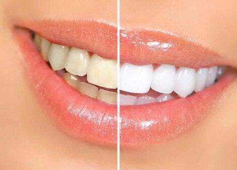 Un blanchiment dentaire.