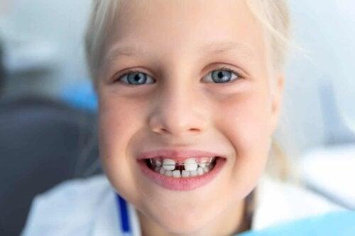 Un enfant avec un diastème.