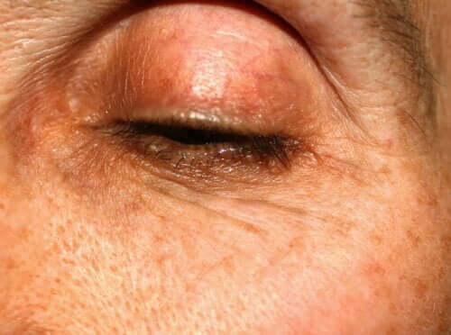 Meibomite : causes, symptômes et traitements
