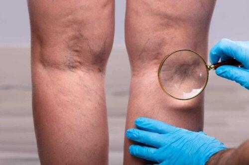 Œdèmes et varices aux jambes.