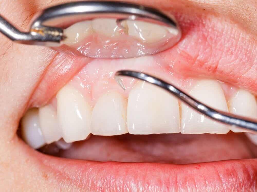 Des dents.