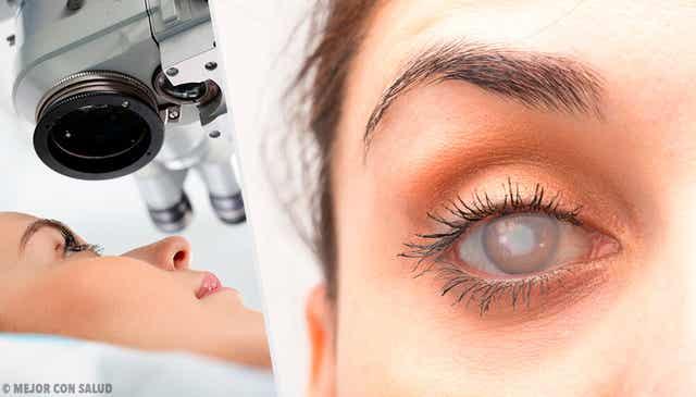 Les symptômes de la cataracte.