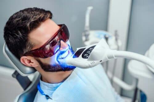 Combien de temps dure le blanchiment des dents ?
