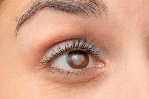 La cataracte chez une femme.