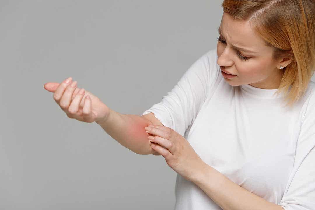 Une femme souffrant de démangeaisons.