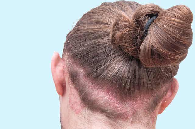 Une femme souffrant de dermatite séborrhéique.