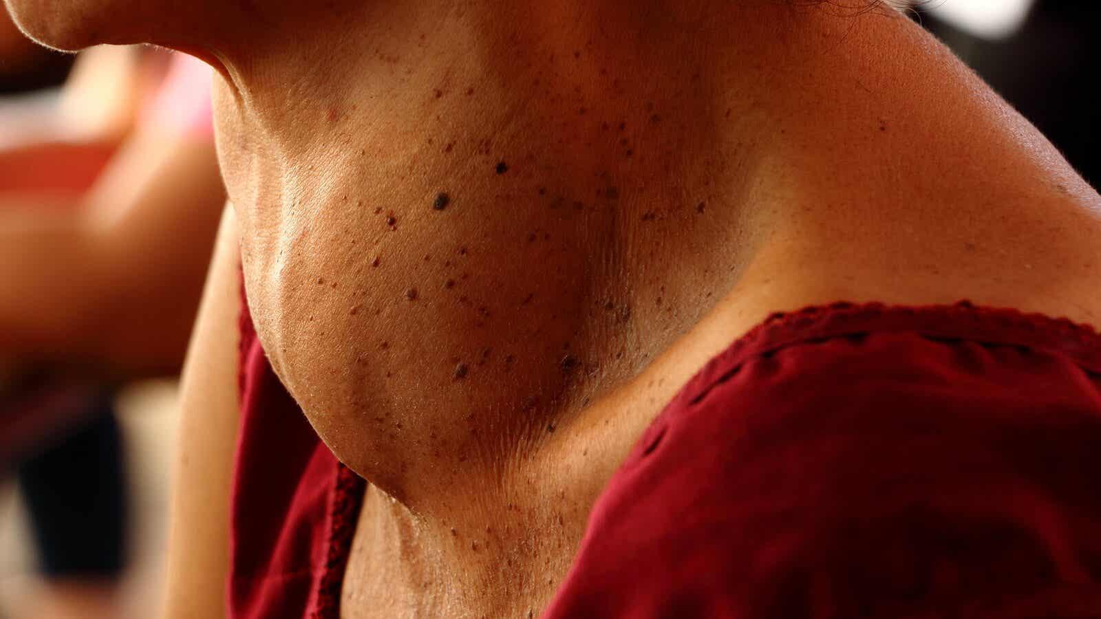 Le goitre est un élargissement de la glande thyroïde.