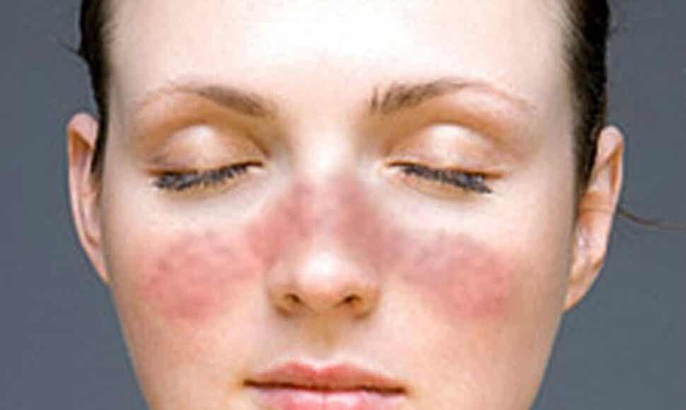 Une femme qui souffre de rosacée.