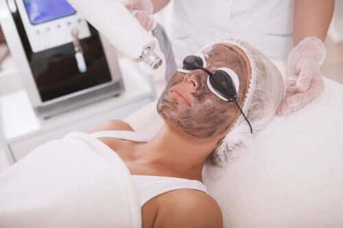 Peeling au laser de carbone : processus et soins