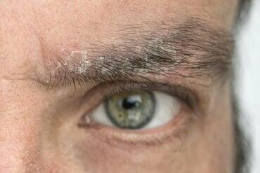 Pellicules de sourcils : pourquoi apparaissent-elles et comment s'en débarrasser ?