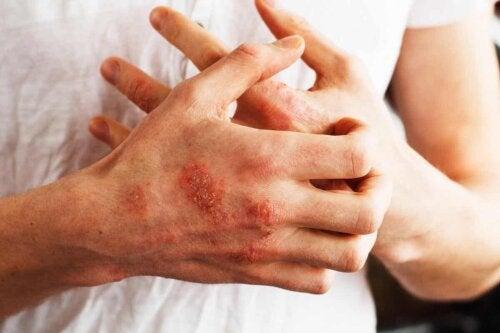 Du psoriasis sur les mains.