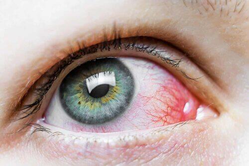 Avoir les yeux rouges.