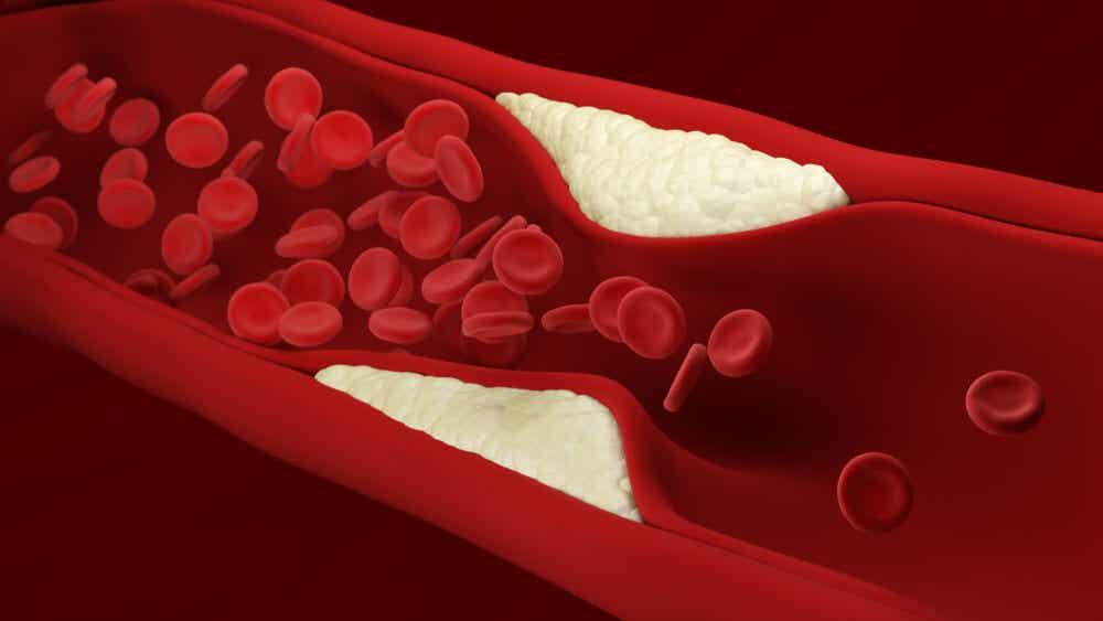 L'artériosclérose provoque la mort par infarctus du myocarde.