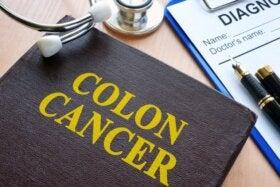 Journée mondiale du cancer du côlon : faites-vous dépister !