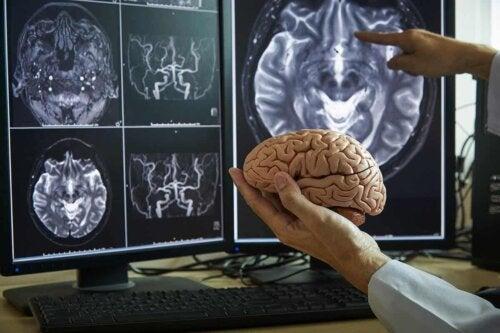 Étude du cerveau.