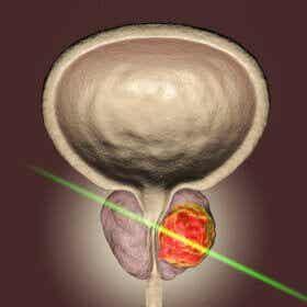 Le laser : une percée scientifique pour la chirurgie de la prostate