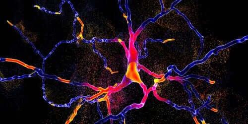 Une nouvelle technique pour différencier la maladie de Parkinson et l'atrophie multisystémique