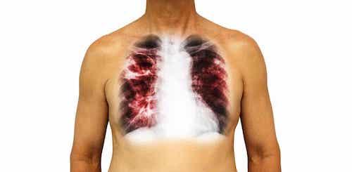 Les maladies infectieuses : la tuberculose.