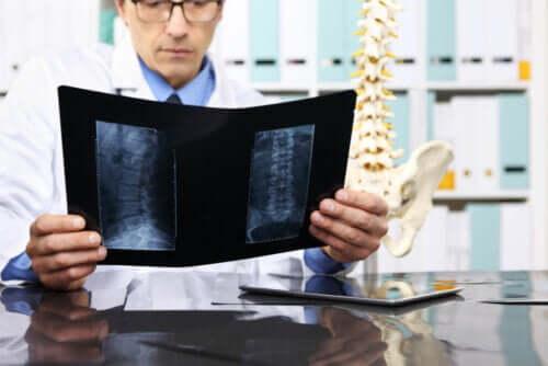Quand faut-il opérer une hernie discale ?