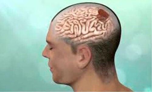 Une tumeur cérébrale.