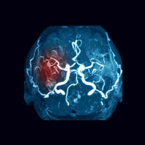 Embolie cérébrale.