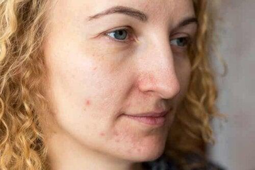 Une femme souffrant de mélasma sur le visage.