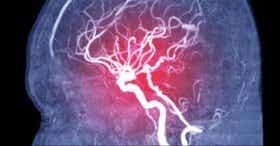 Embolie cérébrale : symptômes, types et causes
