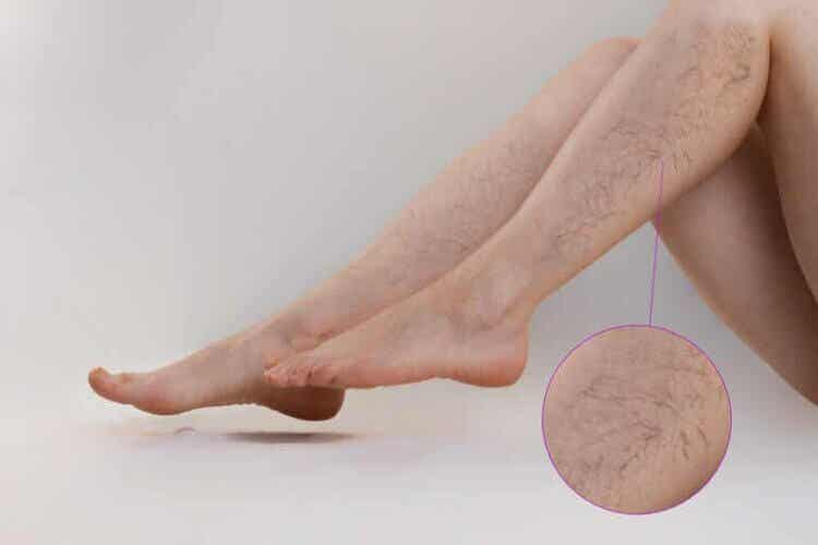 Les traitements des lésions vasculaires