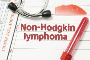 Lymphome non Hodgkinien : causes et traitement